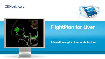 zation-product-spec-sheets-flightplan-for-liver-gehc-datasheet_aw-flightplan-for-liver