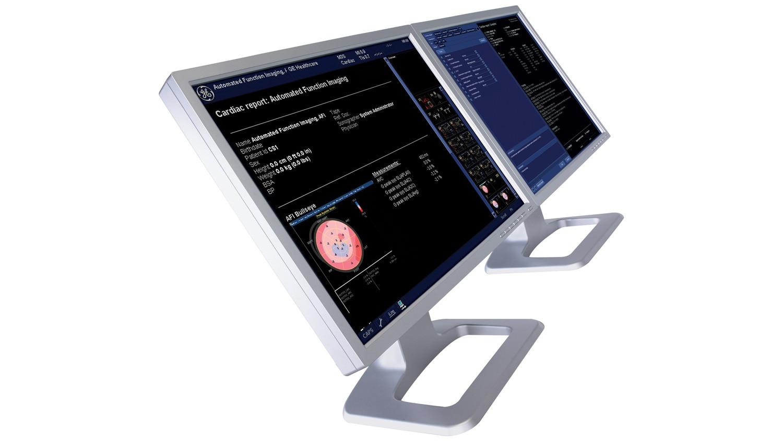 EchoPAC computer monitors.