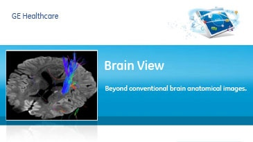 cts-advanced-visualization-product-spec-sheets-brain-view-gehc-datasheet_aw-brain-view_pdf