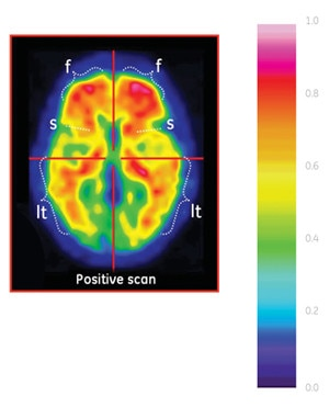 positive scan