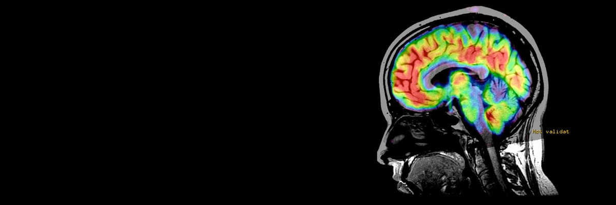 3D ASL pediatric imaging clinical head