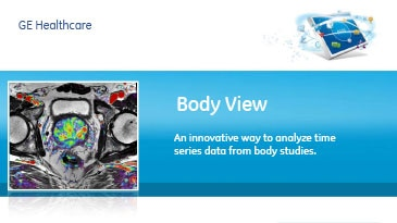 roducts-advanced-visualization-product-spec-sheets-bodyview-gehc-datasheet_aw-bodyview_pdf