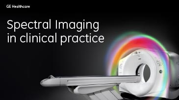 tion-case-studies-gsi-viewer-gehc-case-study-gsi_spectral_imaging_in_clinical_practice_pdf