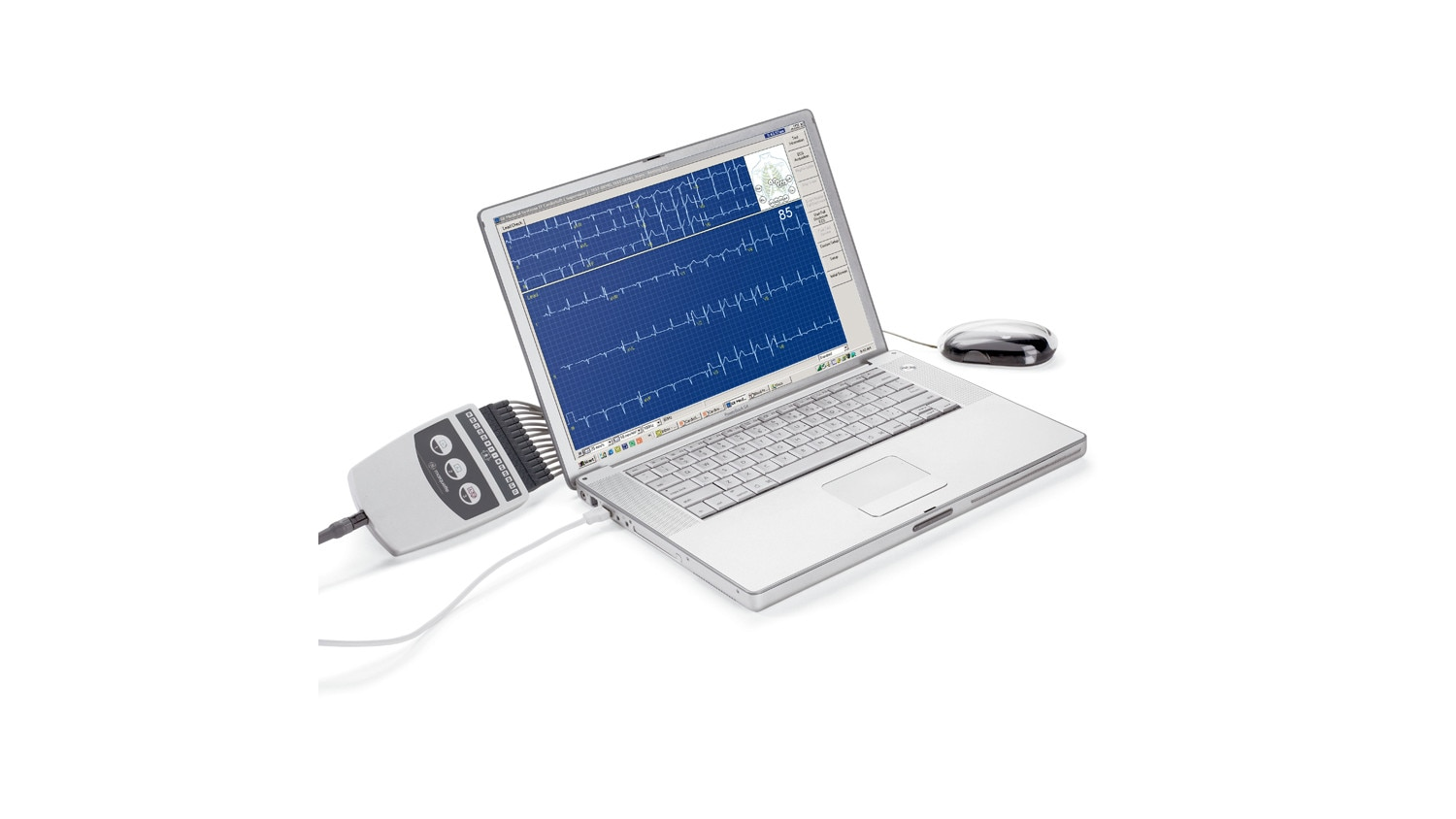 Diagnositc ECG cardiosoft laptop.