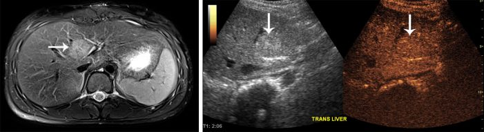 tark contrast: a new tool to image the liver