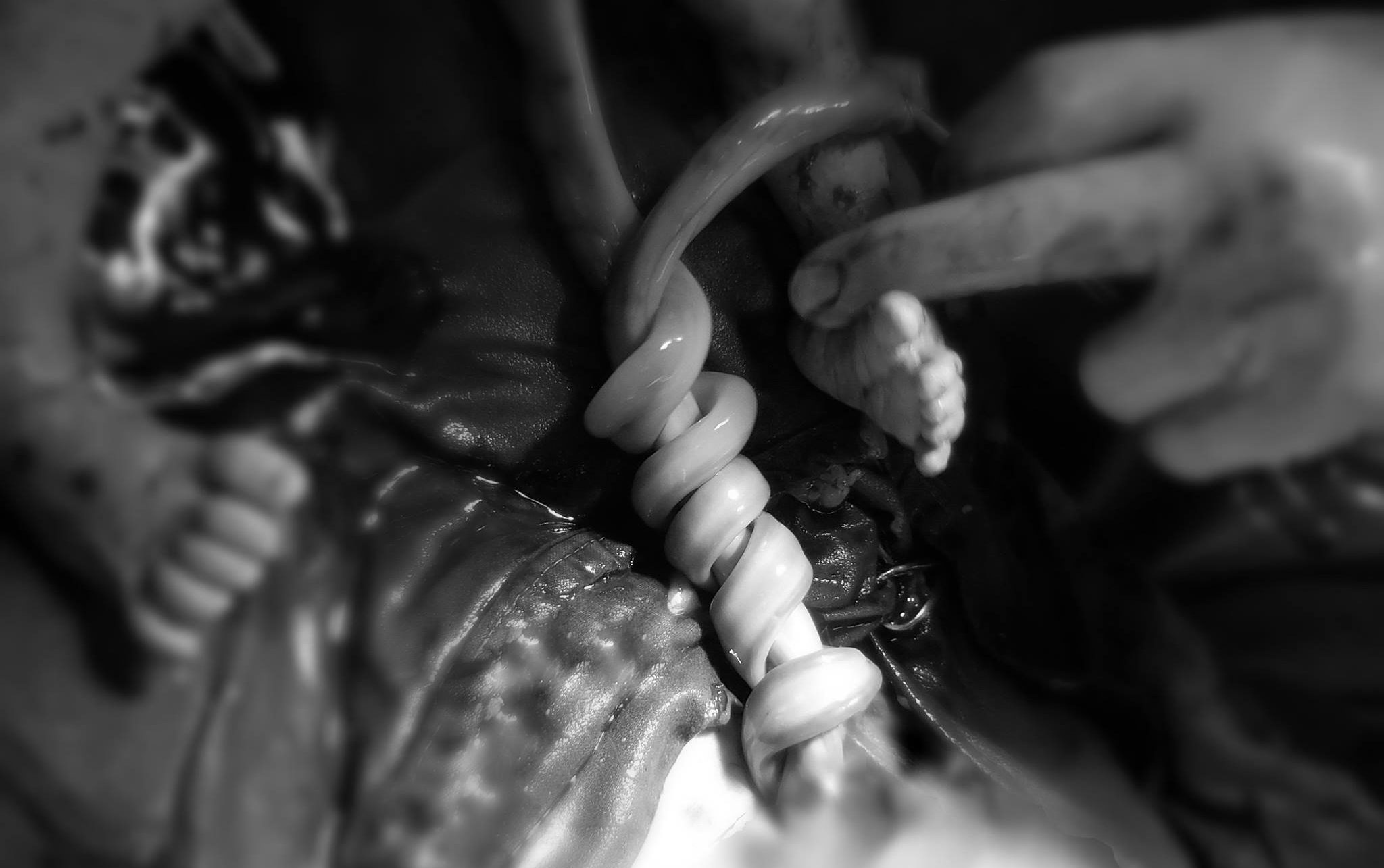 Doctor captures live image of twins with entangled umbilical cord